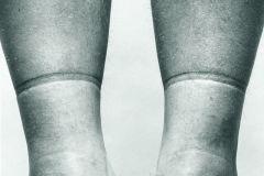113_Model_Leg